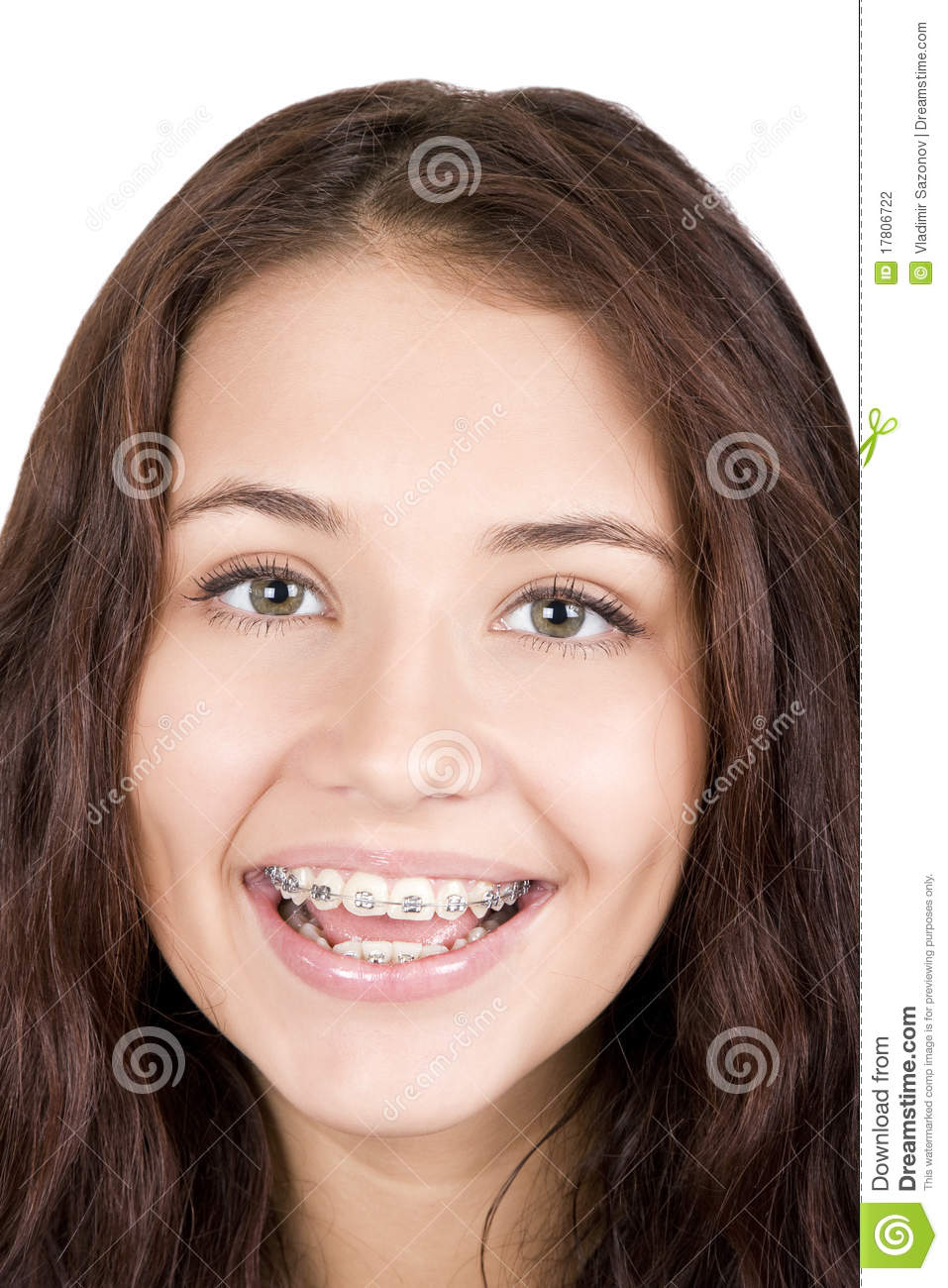 with braces girl Asian